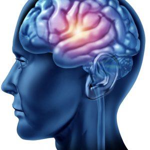 Bổ não